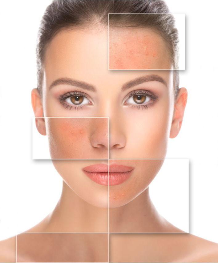 Mujer con acné activo y cicatrices en el rostro