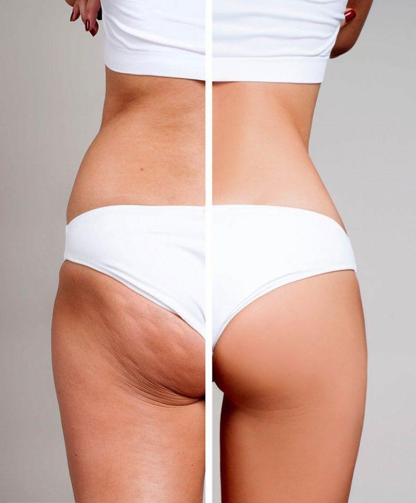 Cuerpo de una mujer donde se puede apreciar la celulitis en el lado izquierdo de su cuerpo, uno de los corporales más pedidos