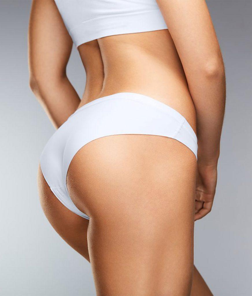 Mujer mostrando un moldeo corporal (Levantamiento de Glúteo), uno de nuestros tratamientos corporales