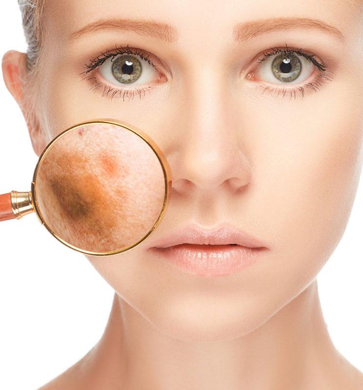 Mujer con problemas de Manchas Faciales como el melasma