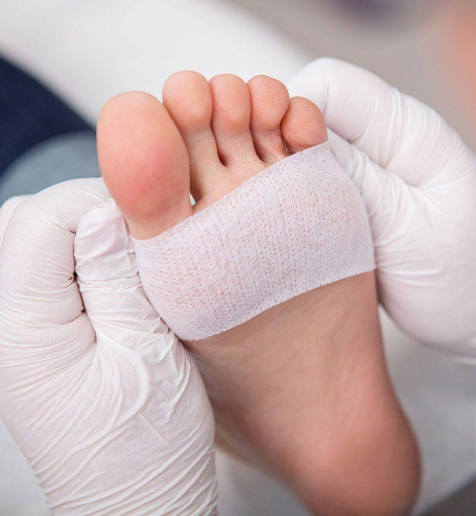 Persona vendando un pie por causa de una lesión cutánea listo para recibir terapias de rehabilitación