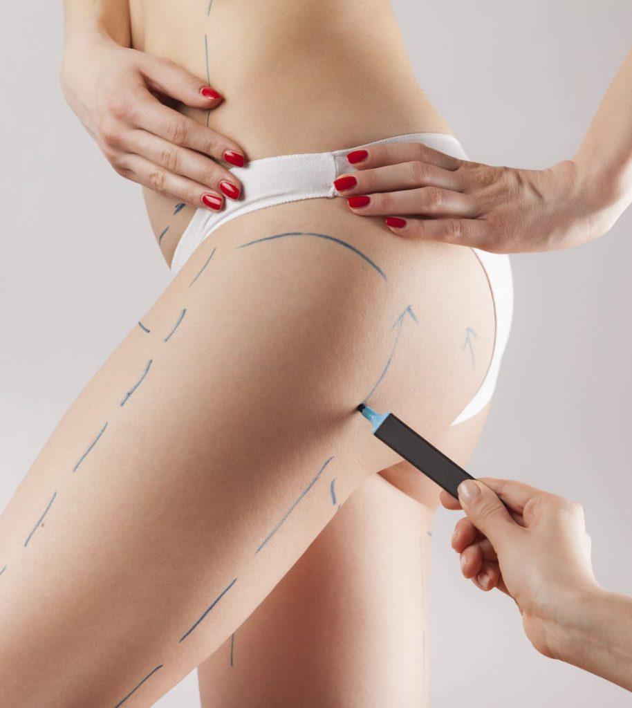 Persona marcando la zona de las piernas para realizar una cirugía, la paciente tomara terapias postoperatorias para mejores resultados