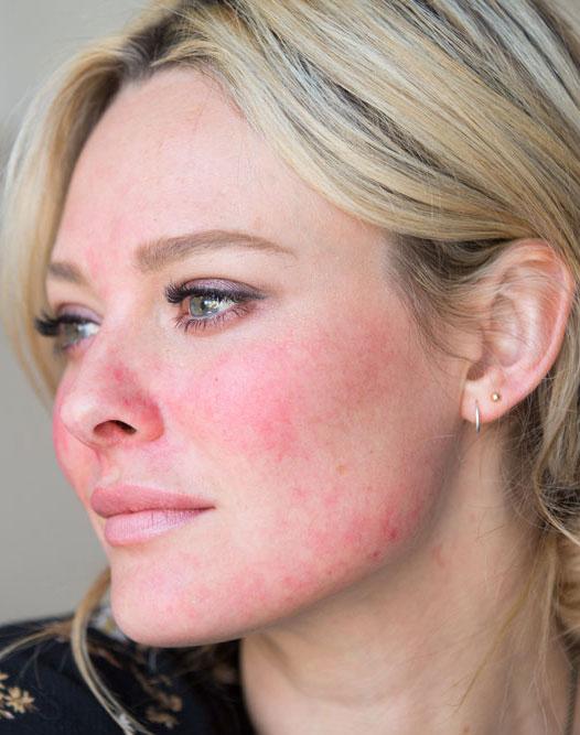 Mujer de unos 35 años con problemas faciales de Rosácea y piel sensible