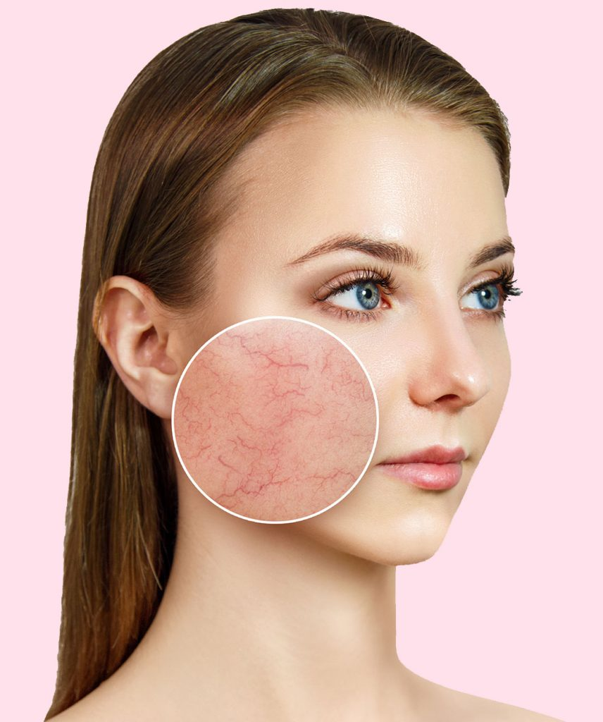 Mujer que presenta Venitas rojas faciales conocidas como telangiectasias o cuperosis