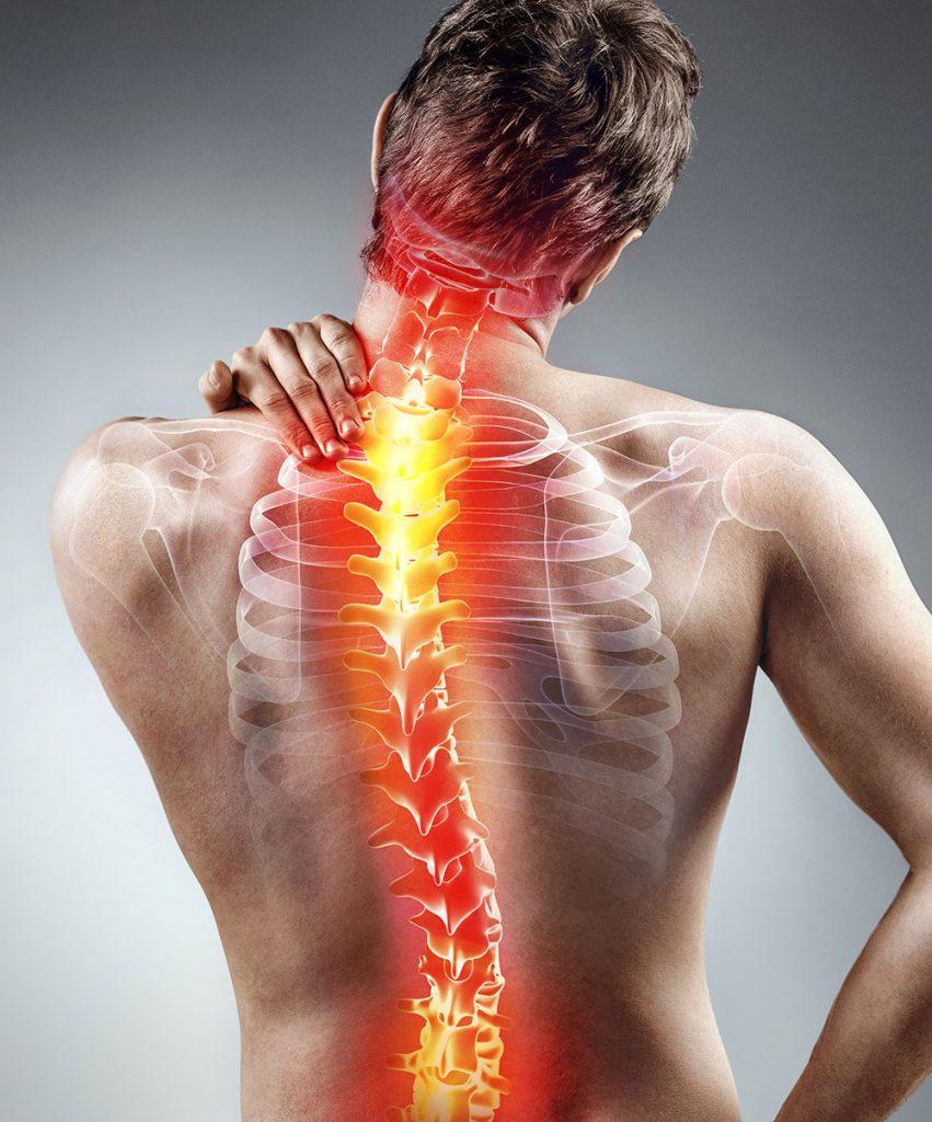 Hombre con dolor de espalda, el cual necesita unas terapias